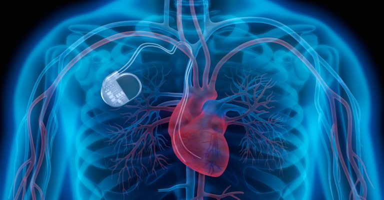 pacemaker, invention, innovation, heart